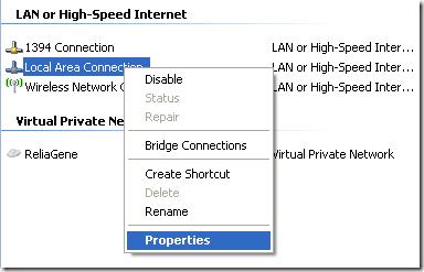 conexión de red local